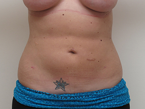 Liposuction Houston