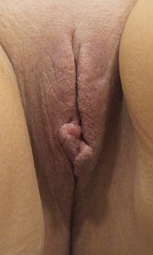 Vaginal rejuvenation houston