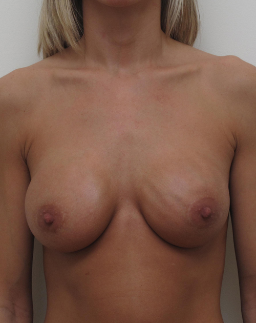 Houston Breast Surgery